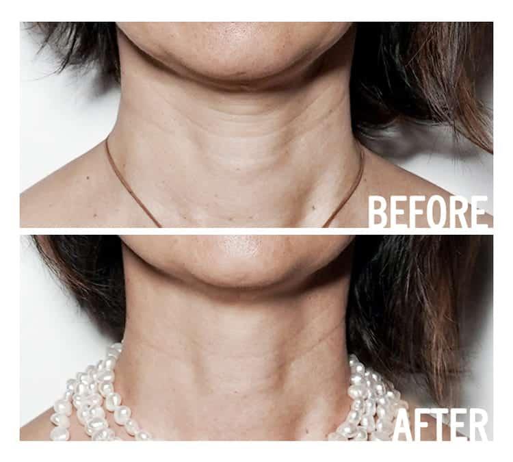 access facelift lifting facial énergétique